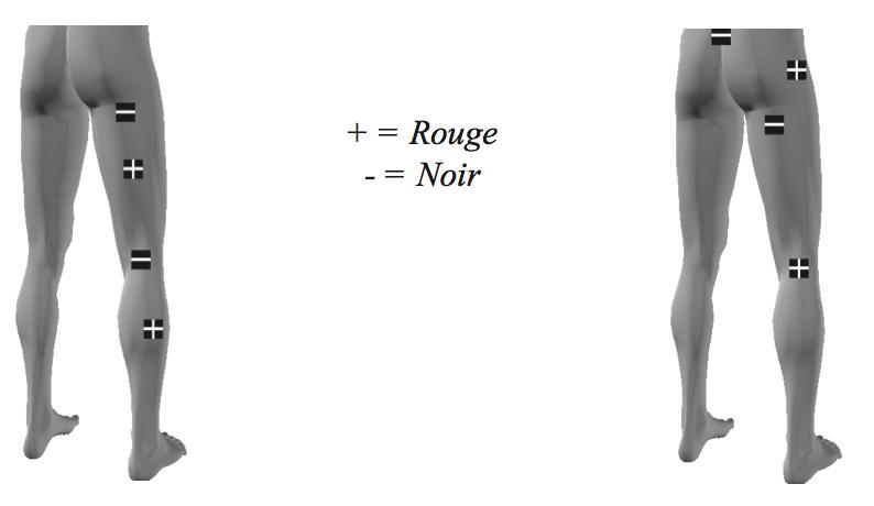 comment placer les lectrodes pour soulager la douleur. Black Bedroom Furniture Sets. Home Design Ideas