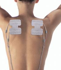 Le placement des électrodes en électrostimulation sportive