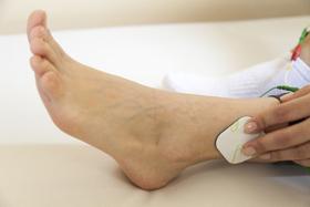 L'électrothérapie avec un appareil d'électrostimulation est un traitement efficace pour les jambes lourdes et les problèmes de circulation sanguine.