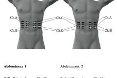 placement-electrodes-stim-01