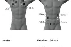 placement-electrodes-stim-02