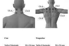 placement-electrodes-stim-05