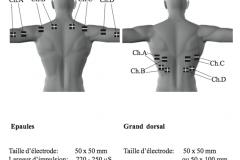 placement-electrodes-stim-06
