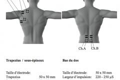 placement-electrodes-stim-07