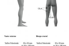 placement-electrodes-stim-16