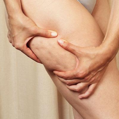 Lutter contre la cellulite avec l'électrostimulation